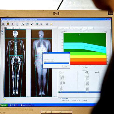 best worst measure body fat dexa scan