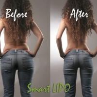 Are You A Possible Candidate for Smartlipo