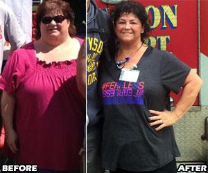 michele-m-weight-loss-story-5