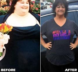 michele-m-weight-loss-story-3