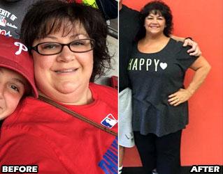 michele-m-weight-loss-story-2