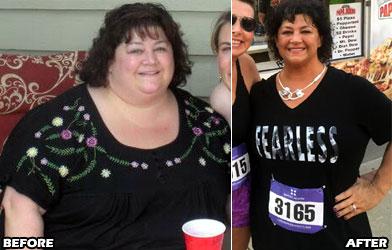 michele-m-weight-loss-story-4