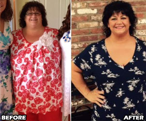 michele-m-weight-loss-story-1