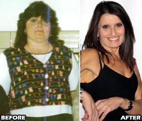 susan-weight-loss-story-2
