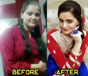 kiranjot-weight-loss-story-2