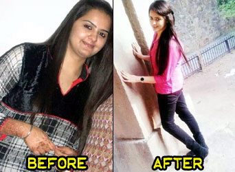 kiranjot-weight-loss-story-5