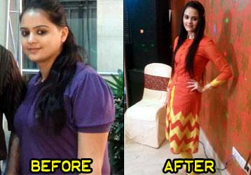 kiranjot-weight-loss-story-3